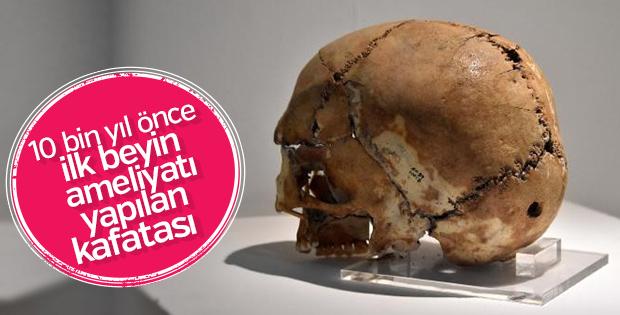 İlk beyin ameliyatı yapılan kafatası büyük ilgi görüyor