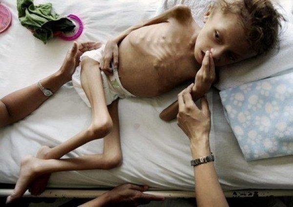 Her 5 saniyede bir çocuk açlıktan can veriyor