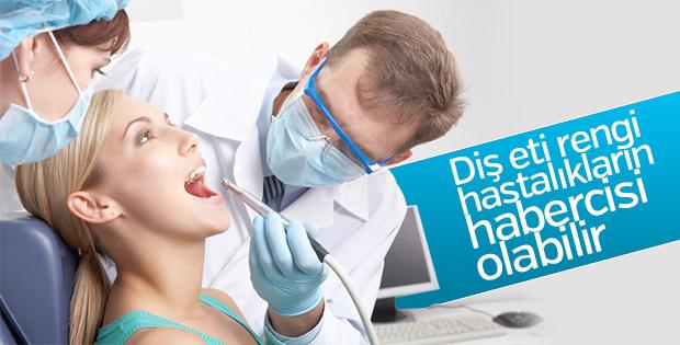 Diş eti rengi hastalıkların habercisi olabilir