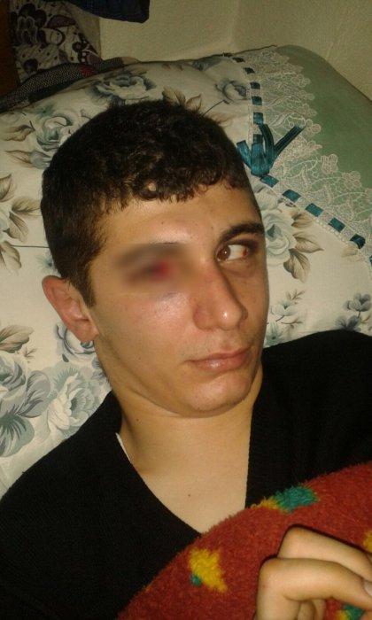Adana'da engelli gence saldıran 4 kişi gözaltında