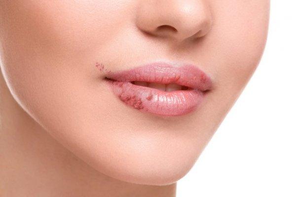 Herpes simplex nedir