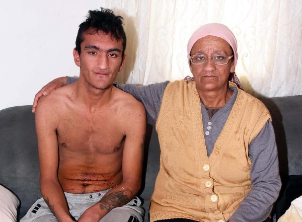 Engelli genci başına çuval geçirip dövdüler, bıçakladılar