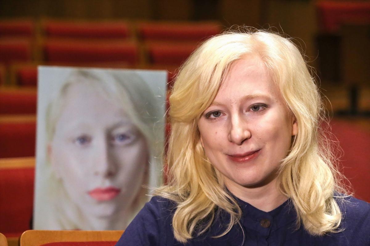 Albinizmin anlatıldığı Kar Taneleri'ne uluslararası ödül