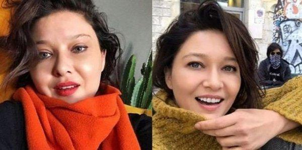 Nurgül Yeşilçay: Bir daha botoks yaptırmam