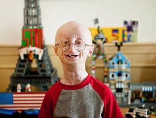 PROGERİA nedir? Progeria hastalığı hakkında genel bilgiler