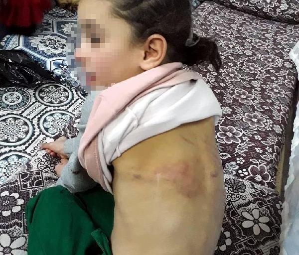 Suriyeli baba kızına işkence yapıp dilendirdi