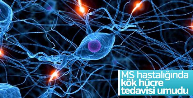 MS hastalığında kök hücre tedavisi