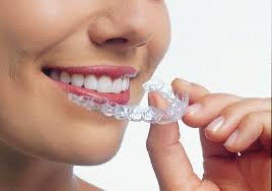 Çarpık dişlere Türk çözümü