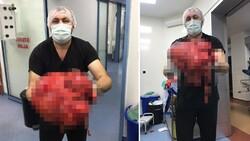 Zonguldak'ta karnından 14 kilogramlık kitle çıkarıldı