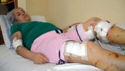 Mersin'de sokak köpeklerinin saldırısına uğrayan kadın