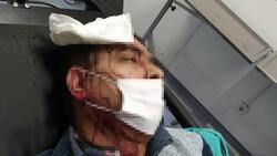 Amasya'da imam, kendisini uyaran müezzine saldırdı