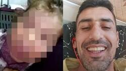 Kayseri'de çocuğu işkence gören babanın açıklamaları