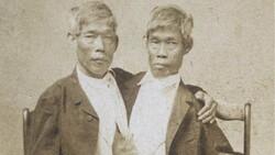 Tek bedende iki arzu: Siyam İkizleri Chang ve Eng Bunker'in hikayesi