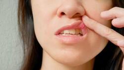 Ağız yaralarını hafifletmek için 5 doğal çözüm