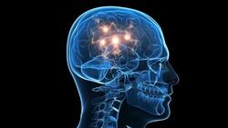 Bilim insanları, beyin hasarlarını tedavi etme yöntemi geliştirdi