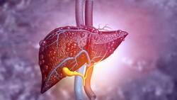 Kansere yol açan sessiz hastalık: Karaciğer yağlanması