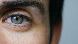Kadir İnanır ameliyat olmuştu! Sarı nokta hastalığı nedir, belirtileri nelerdir?