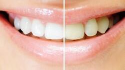 Sarı dişlere elveda: Evde diş beyazlatma yöntemleri