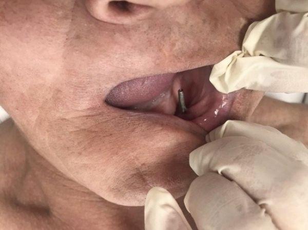 28 yıl ağzındaki sanayi tipi vidalarla yaşadı