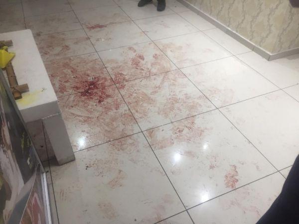 Ankara'da 16 yaşındaki çocuk damat vuruldu