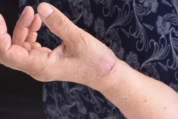 Pitbull'un saldırdığı kadın: Köpeğin bir suçu günahı yok