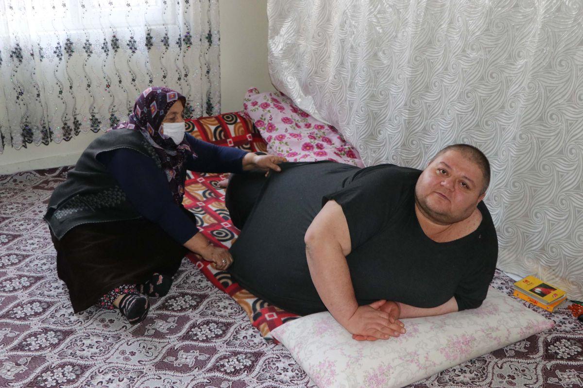 Gaziantep te 280 kilo olan Aydın, eve hapsoldu #3