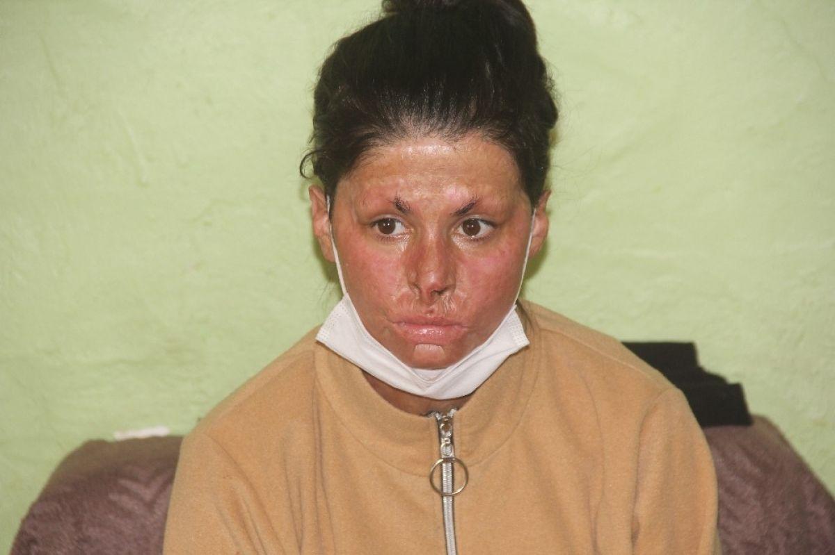 Erzincan da saçlarını benzinle yıkarken kendini yakan genç kız, tedavi olmak istiyor #2
