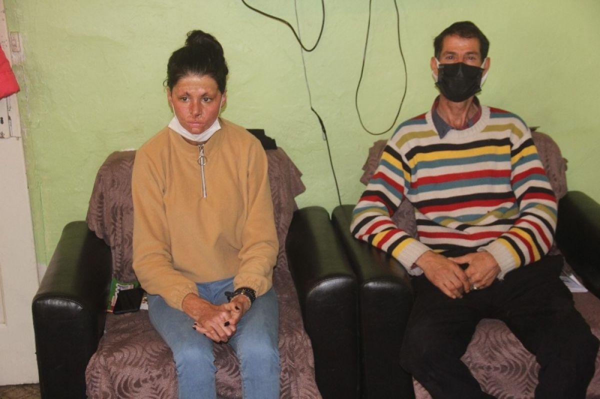 Erzincan da saçlarını benzinle yıkarken kendini yakan genç kız, tedavi olmak istiyor #1