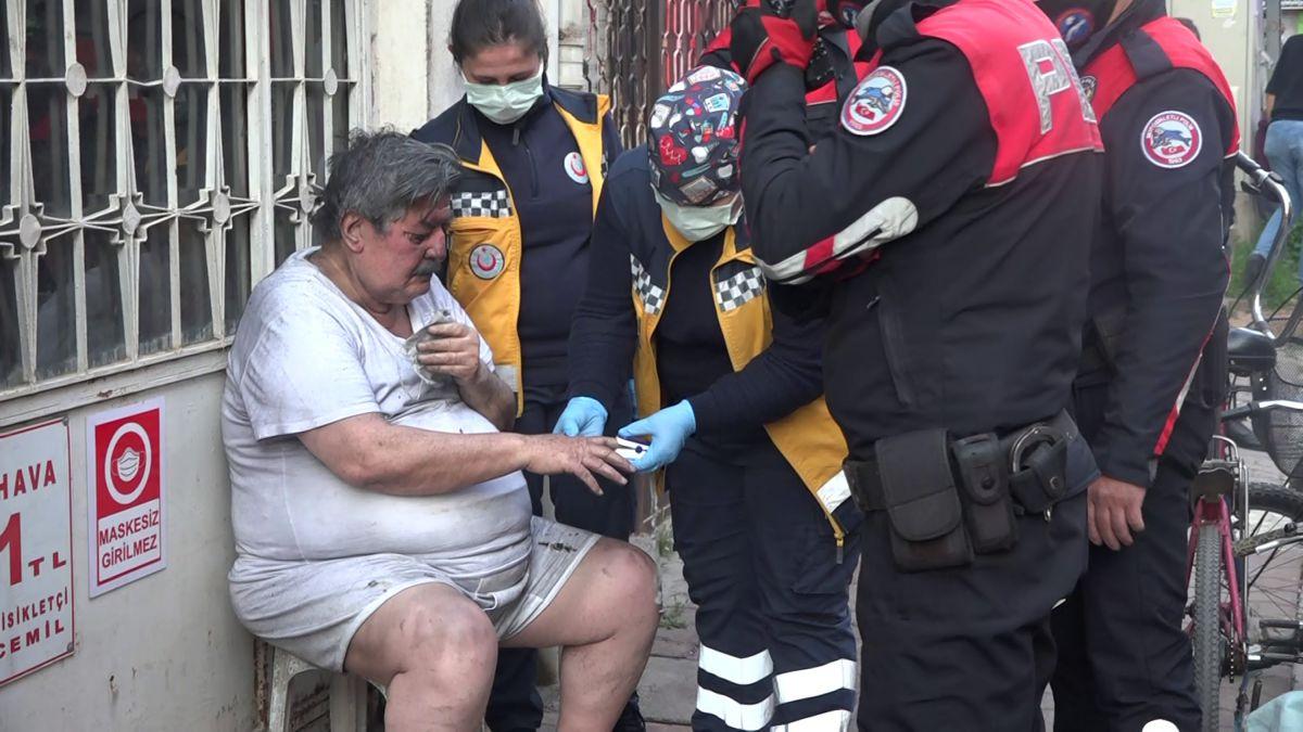 Antalya da patates kızartmak isteyen yaşlı adam ölümden döndü #6