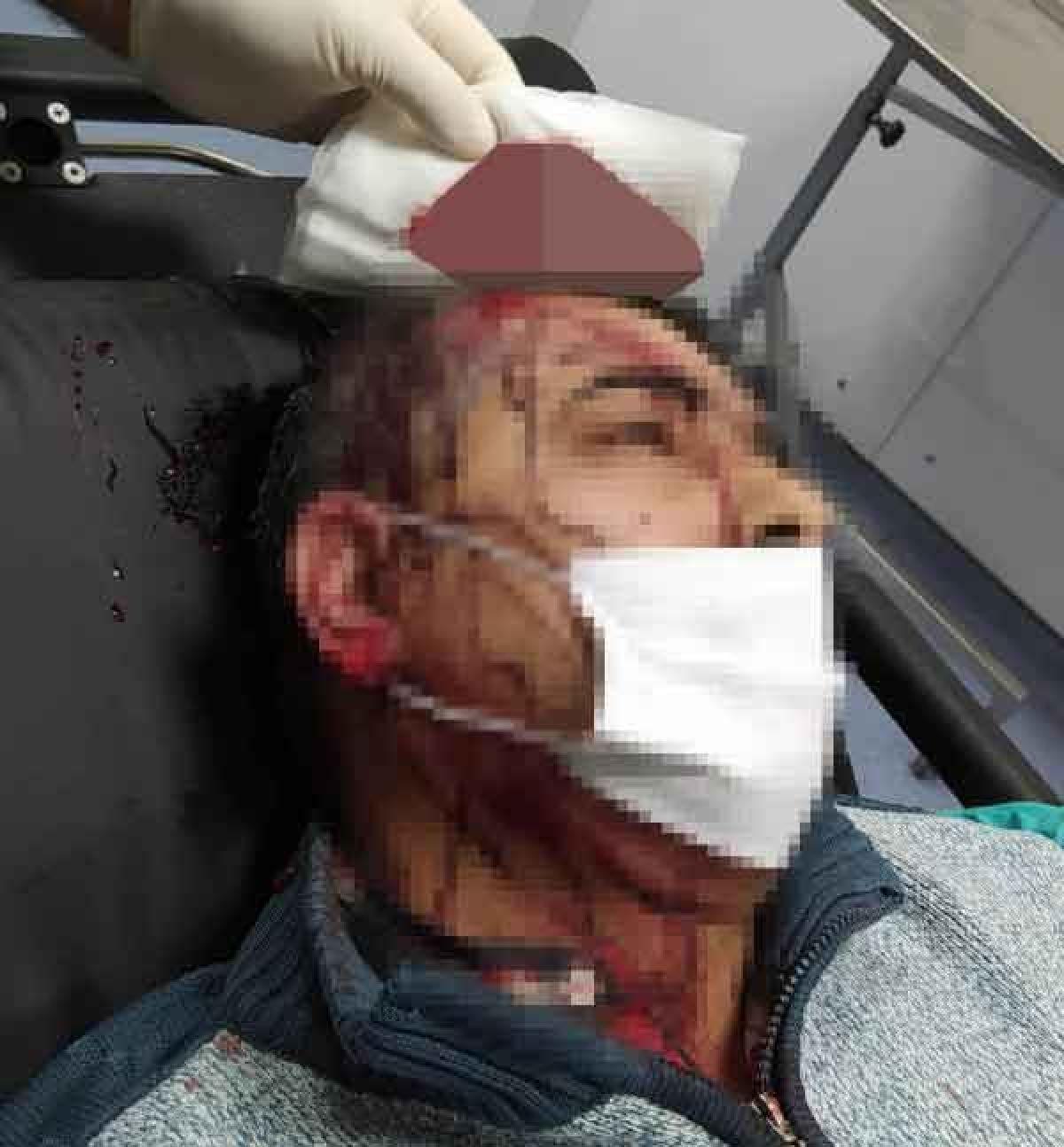 Amasya da imam, kendisini uyaran müezzine saldırdı #6