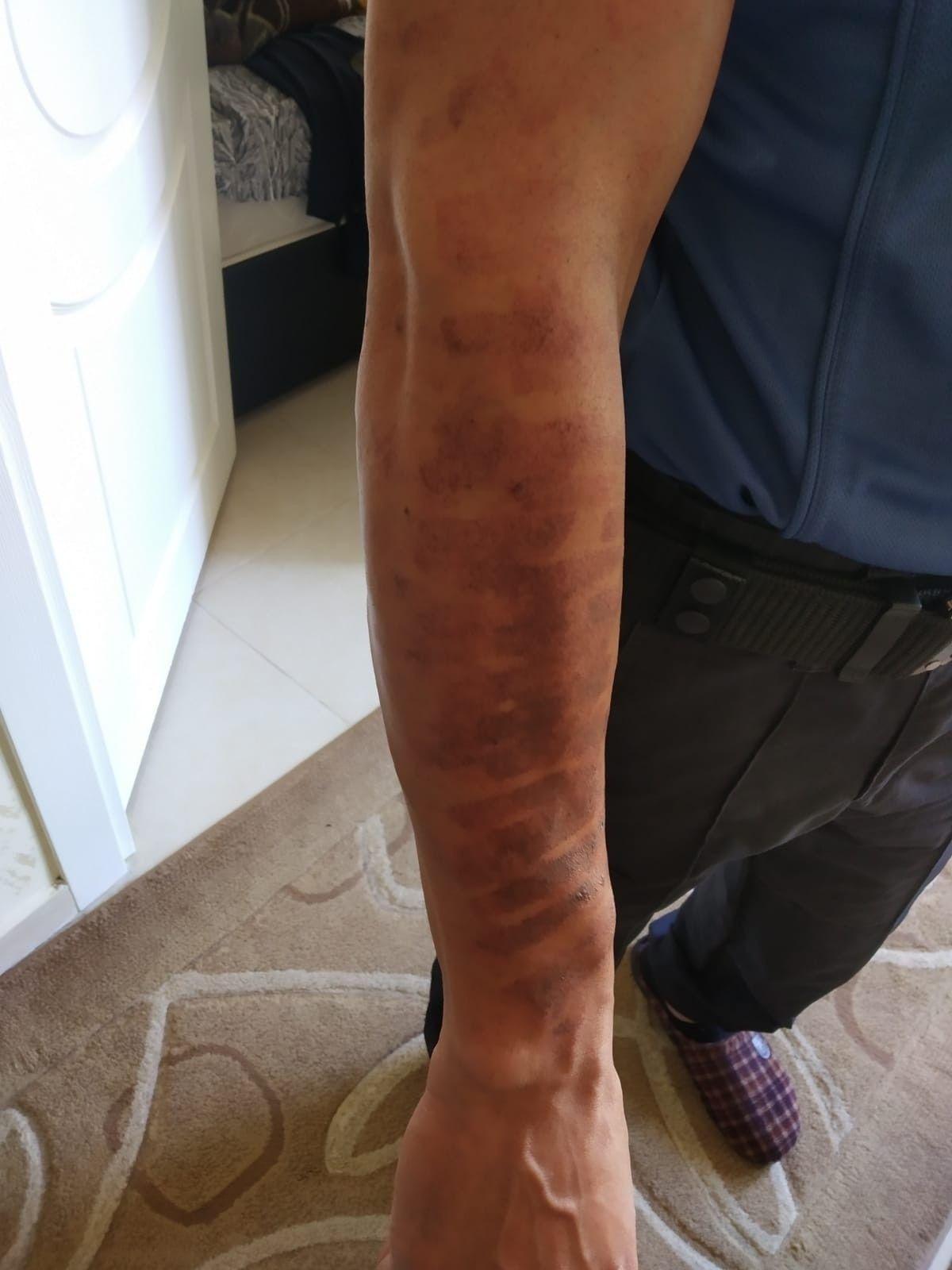 Kahramanmaraş ta lazer epilasyonda kolları yandı #3