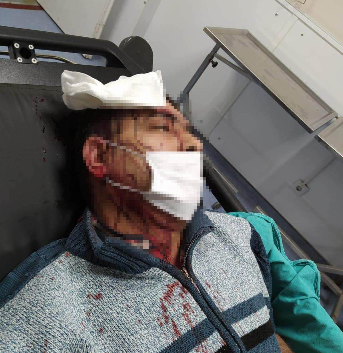 Amasya da imam, kendisini uyaran müezzine saldırdı #3