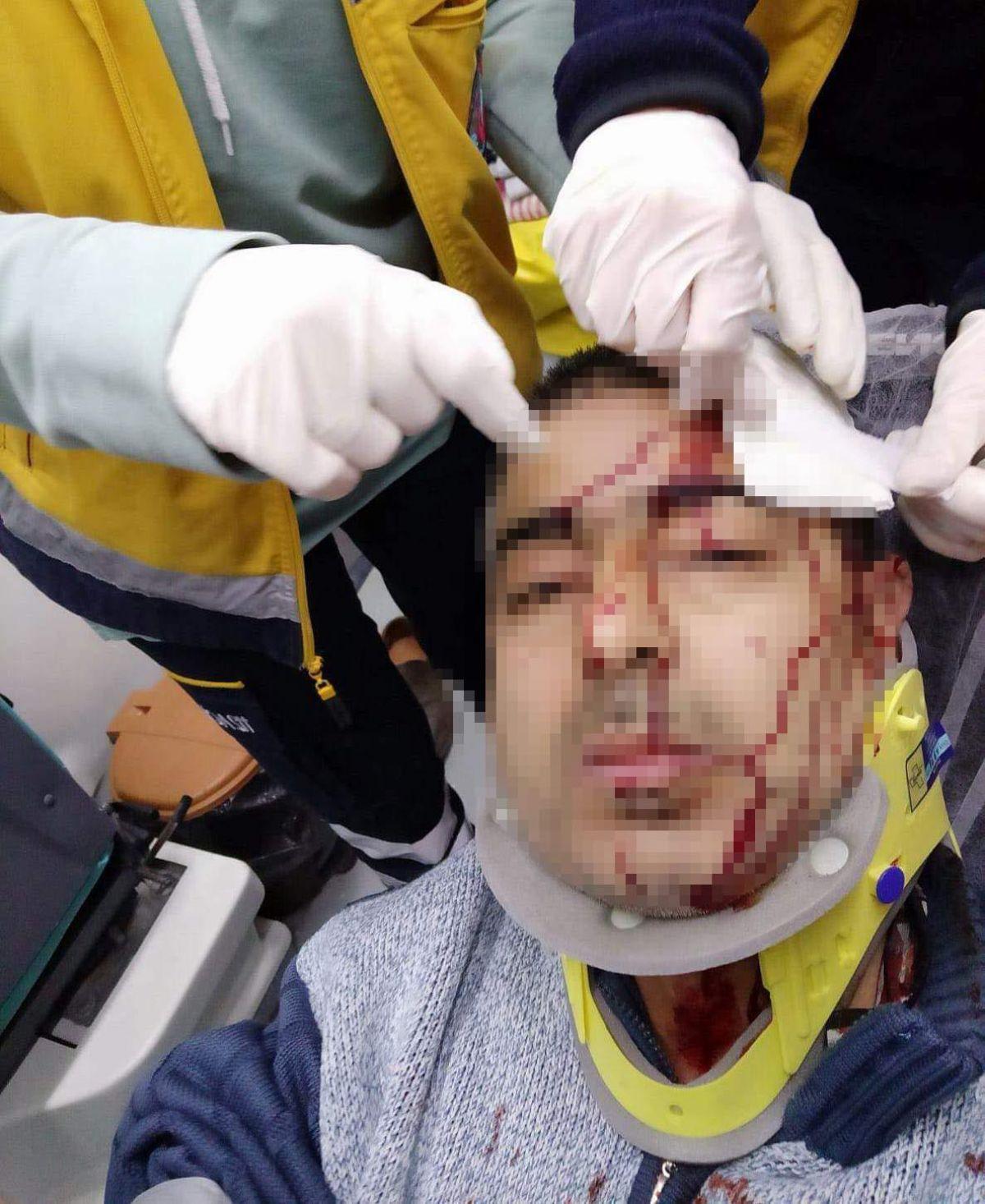 Amasya da imam, kendisini uyaran müezzine saldırdı #2