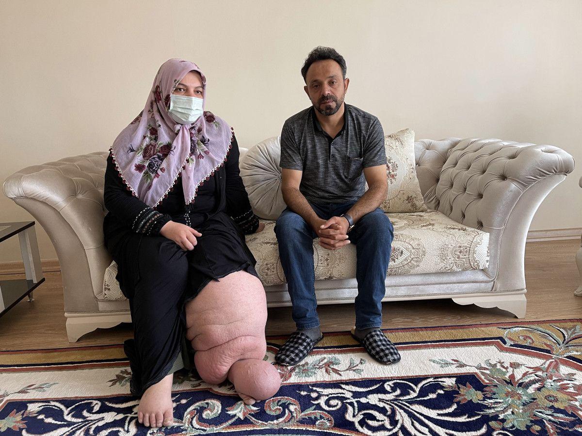 Muş taki fil hastasının en büyük hayali çorap ve ayakkabı giyebilmek #3