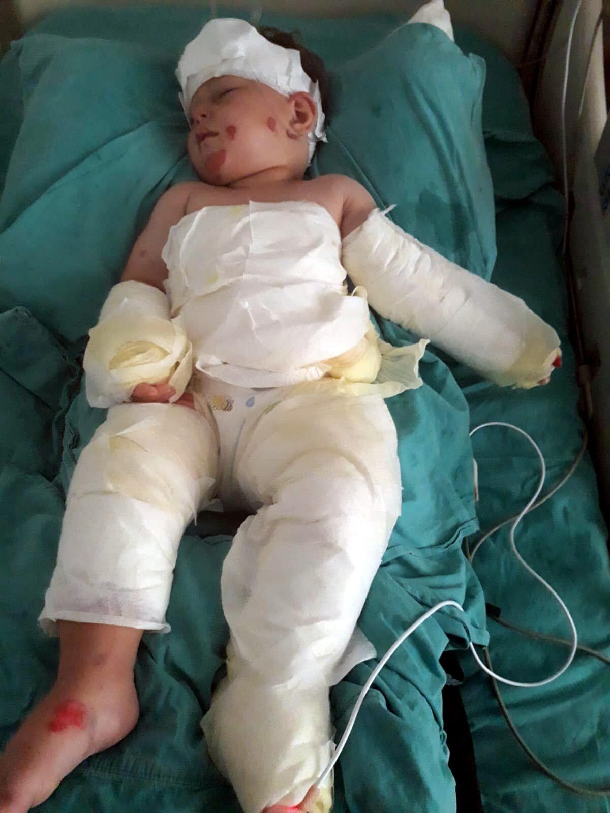İzmir de eşi ve 1,5 yaşındaki oğlunu  kolonya ile ateşe verdi #2