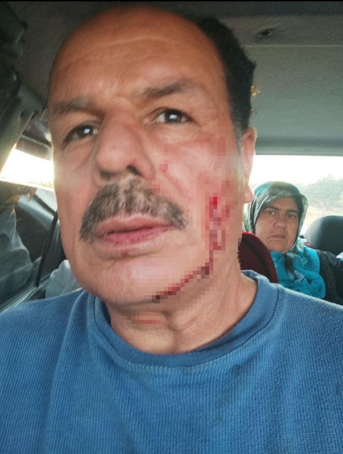 Gaziantep te eski damat dehşeti: Engelli kayınpederini dövdü #6