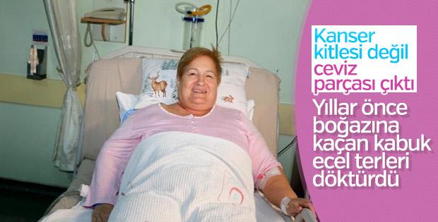 65 yaşındaki kadının akciğerinden ceviz parçası çıktı