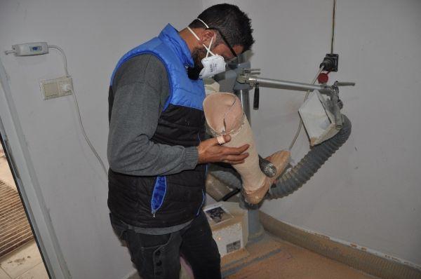 6 bin 500 Suriyeliye protez takıldı