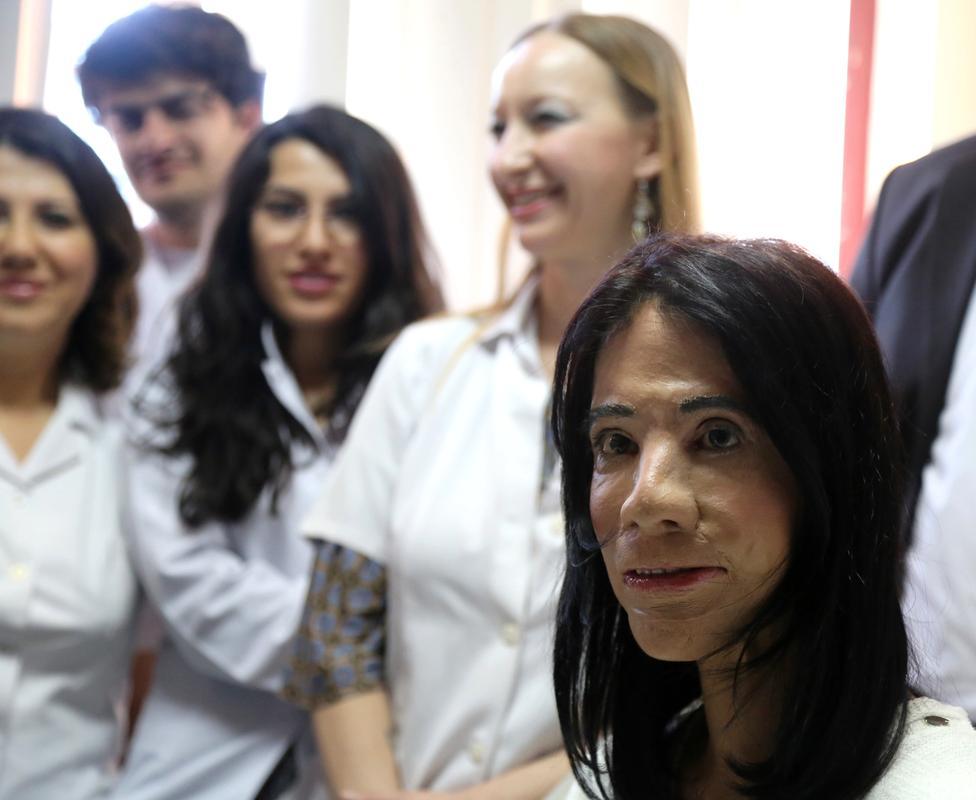Türk doktordan dünyanın konuştuğu yüz nakli
