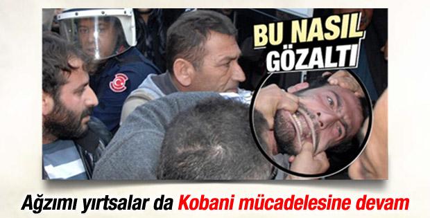 Adana'da ağzından tutularak gözaltına alınan genç konuştu İZLE
