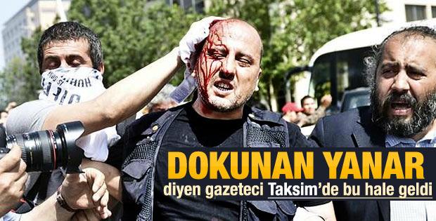 Gazeteci Ahmet Şık Gezi eyleminde yaralandı - izle
