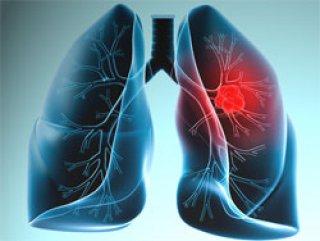 Akciğer kanseri Türkiye'de durdu