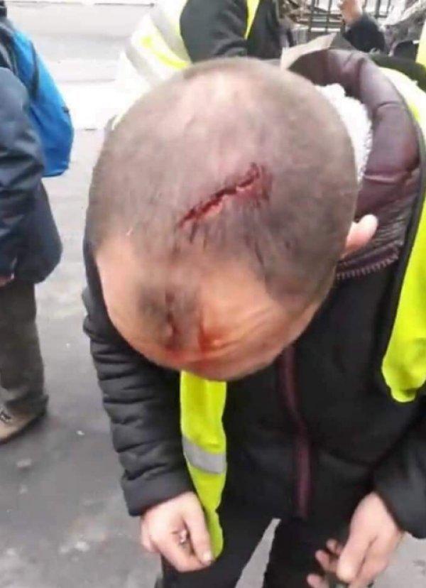 BM'ye göre Fransız polisi şiddet kullanmadı