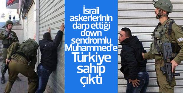 Down sendromlu Muhammed'e Türkiye sahip çıktı