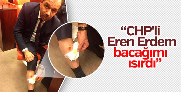 Eren Erdem AK Partili vekili bacağından ısırdı