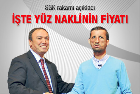 SGK yüz nakli için 46 bin lira ödeyecek