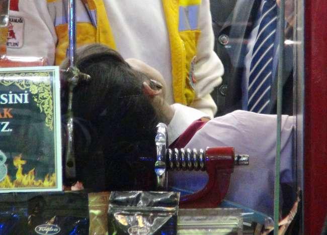 Genç bir kadın saçlarını kahve öğütme makinesine kaptırdı