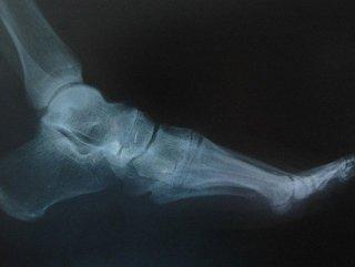 Kırıkların tedavisinde ipek vidalar kullanıldı