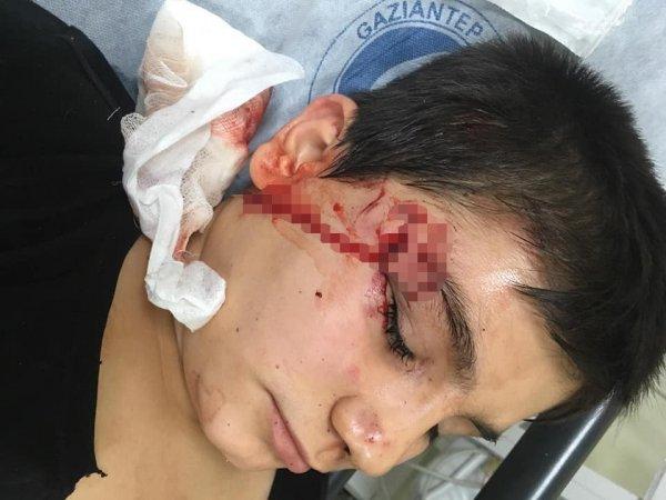 Pitbull saldırısına uğrayan çocuk güçlükle kurtarıldı