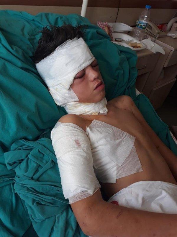 Muğla'da ilkokul öğrencisine köpek saldırdı